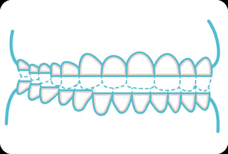歯ぎしりのイメージイラスト