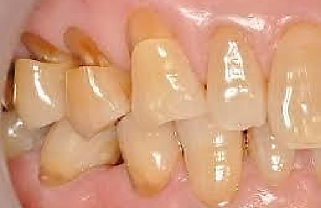 歯ぎしりの症状例3