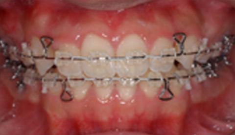 成人矯正治療における治療経過 治療開始10ヶ月1