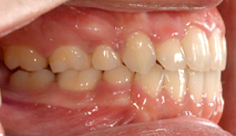 治療前、治療後の比較 治療後2