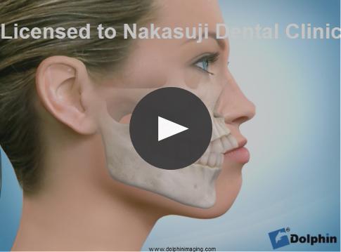 非抜歯による開咬治療1