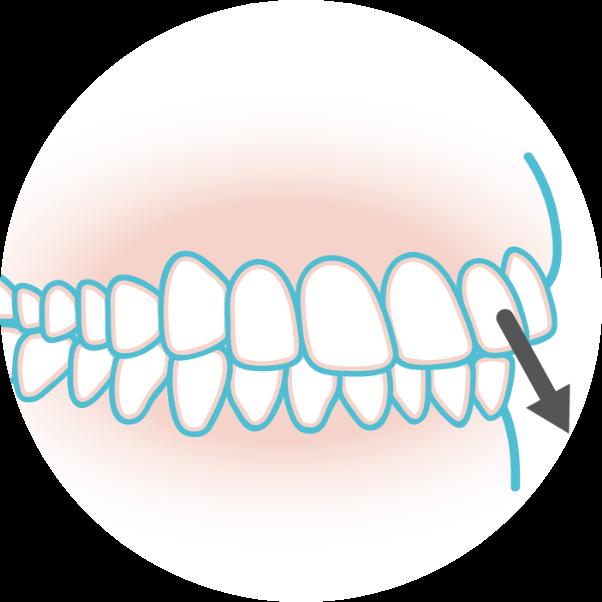 出っ歯のイメージイラスト