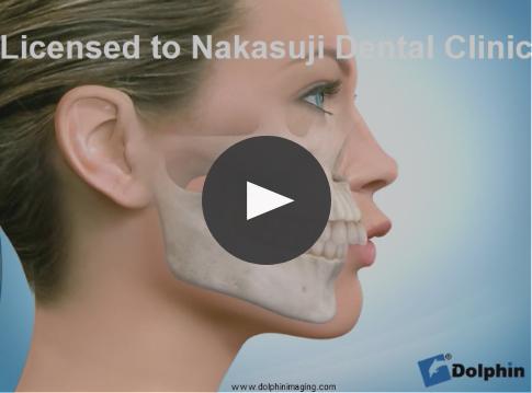 非抜歯による出っ歯治療