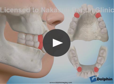 上下第一小臼歯抜歯による出っ歯治療
