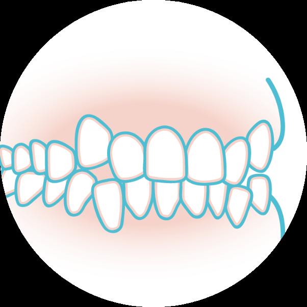 歯のがたつきのイメージイラスト