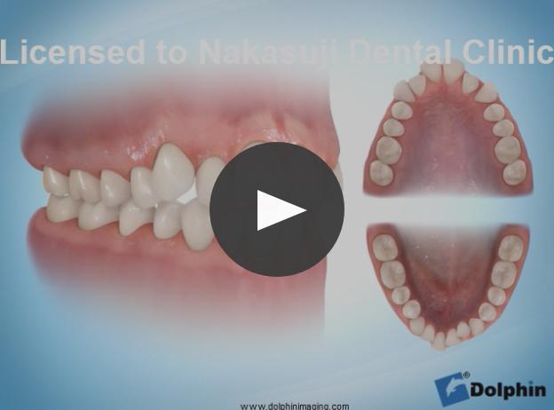 非抜歯による叢生治療