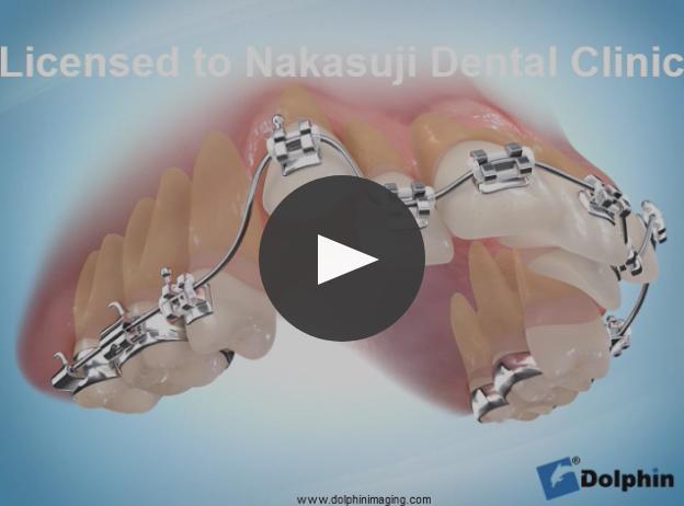 上顎第一小臼歯抜歯による叢生治療