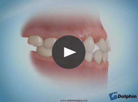受け口治療・歯の移動矯正