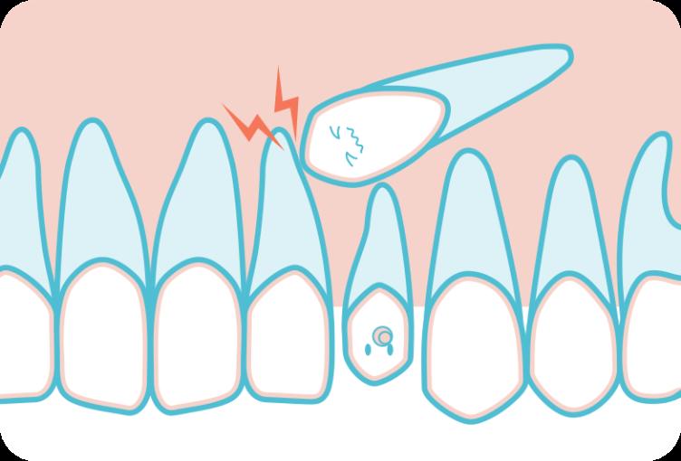 埋伏歯のイメージイラスト