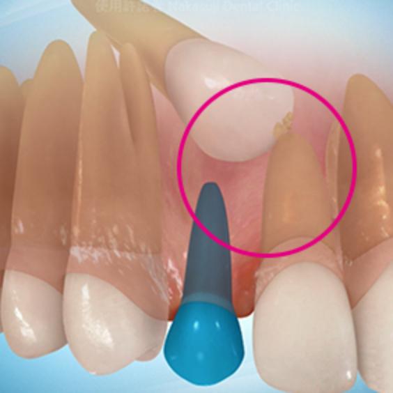 埋伏歯の症状1