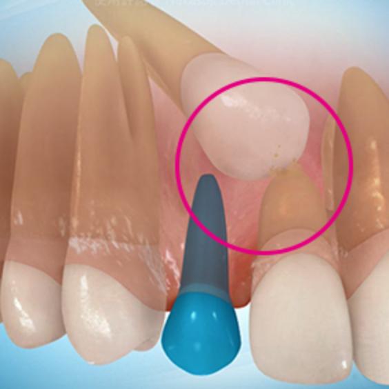 埋伏歯の症状2