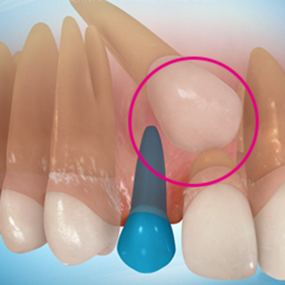 埋伏歯の症状3