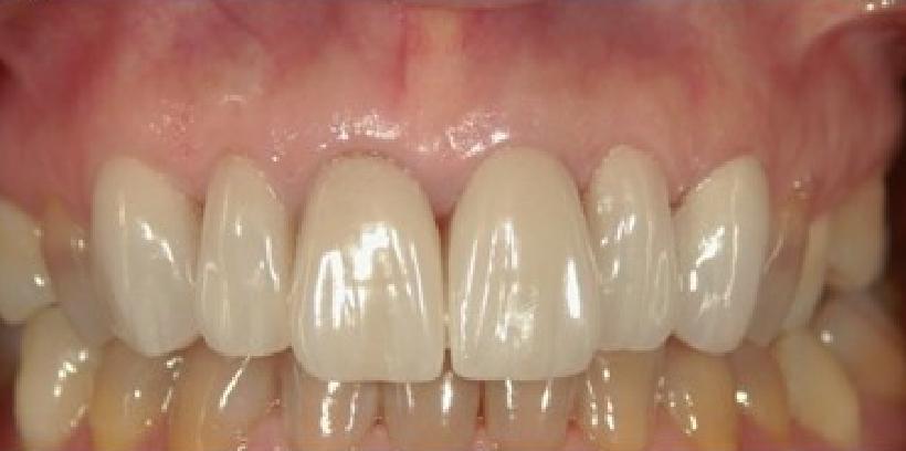歯のすり減りのM.I.治療の例 治療後