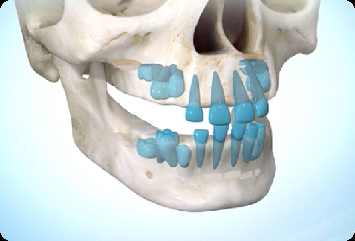 1歳頃の歯並びの画像