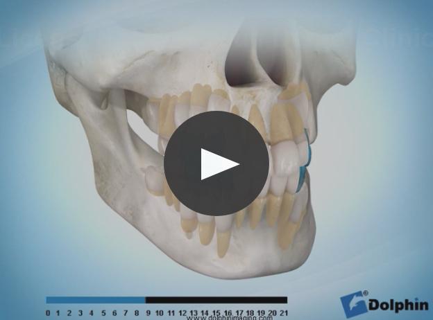 正常な歯の萠出(閉口時)