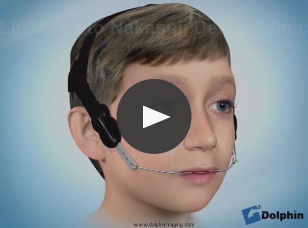 ハイプルヘッドギアによる上顎前出治療