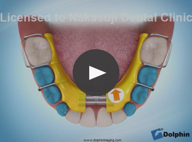 下顎拡大装置による叢生治療
