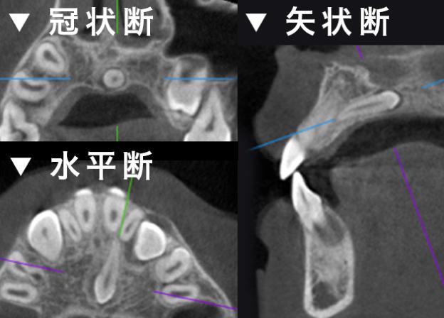過剰歯の診査 冠状断 水平断 矢状断