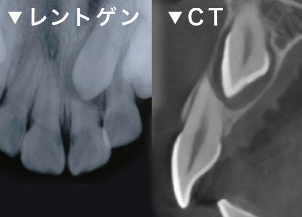 埋伏歯の診査 レントゲン CT