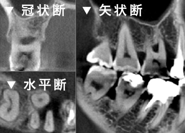 歯周病の診査 冠状断 水平断 矢状断