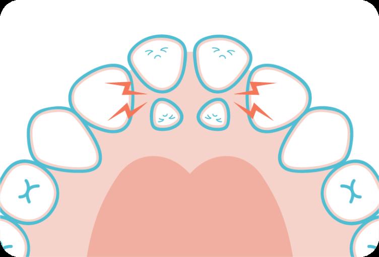 過剰歯のイメージイラスト