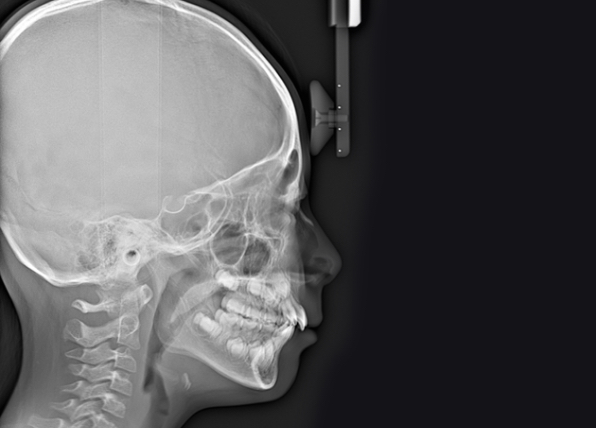 側貌頭部エックス線規格写真