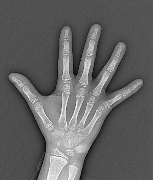 骨年齢の検査