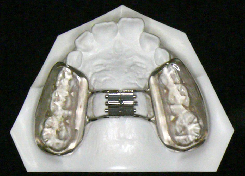 上顎骨拡大装置の図