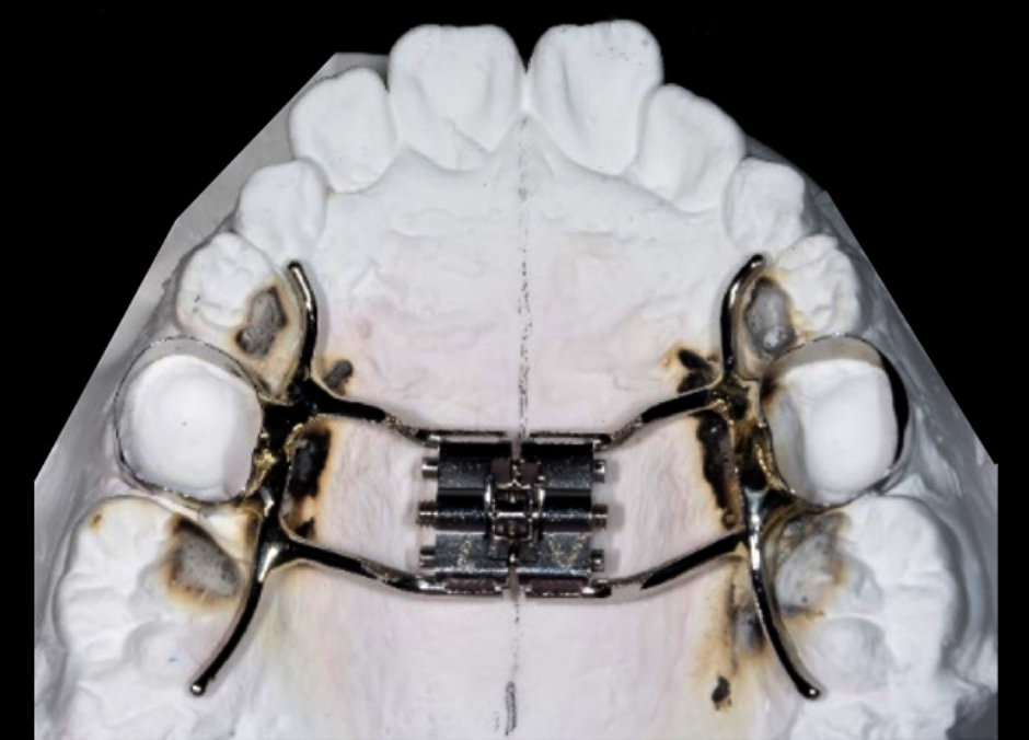 上顎骨拡大装置2の図