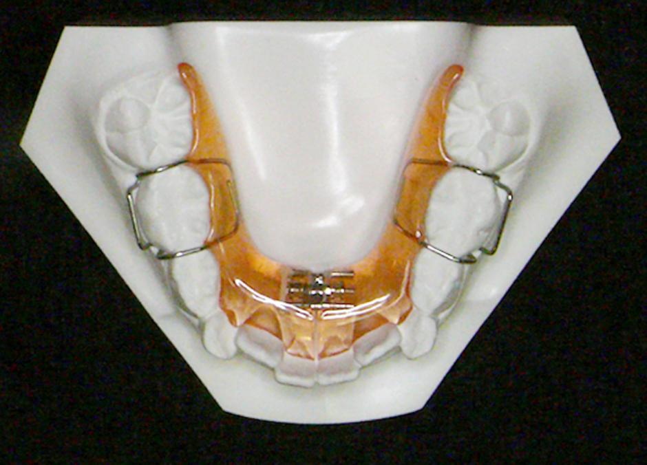 下顎歯列拡大装置(取り外し式)の図