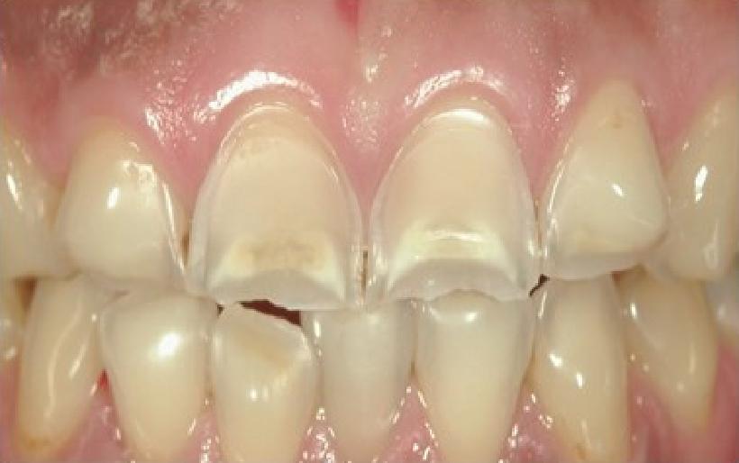 歯のすり減りのM.I.治療の例 治療前