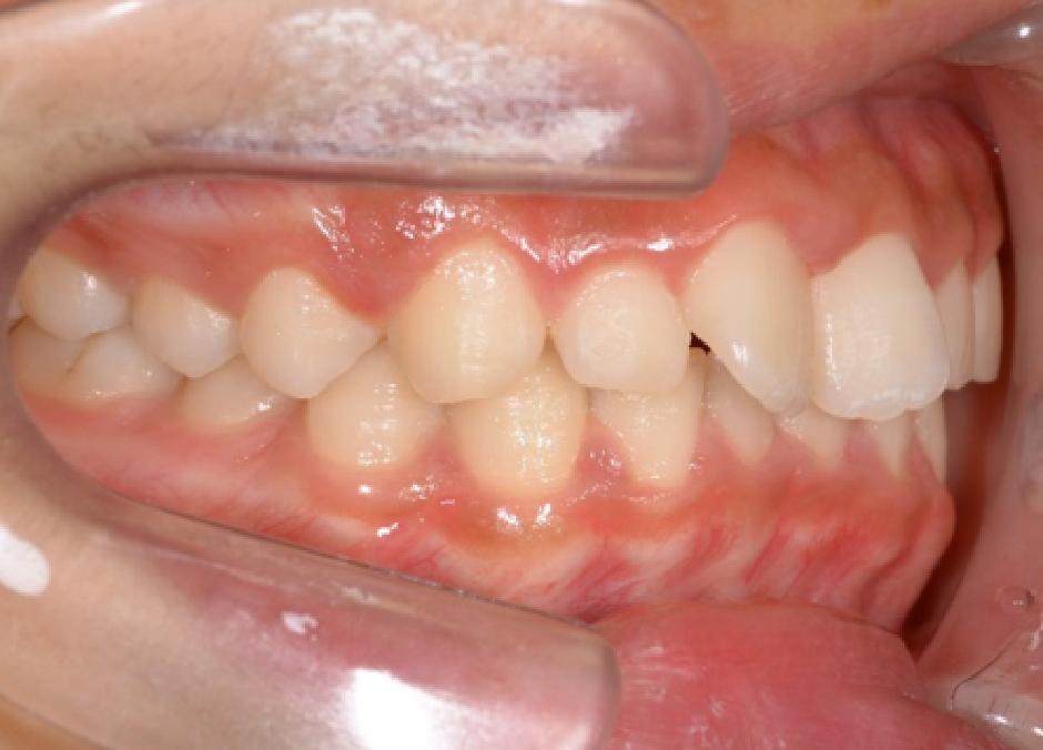 上の前歯の歪みの図1
