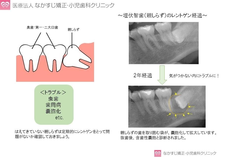 親知らず 治療 費 親知らずの抜歯の費用はいくらですか?