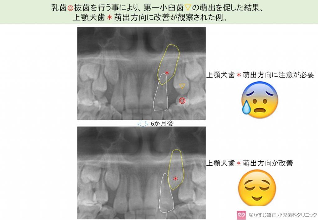 乳歯抜歯による上顎犬歯の萌出促進